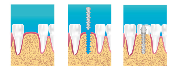 les implants dentaires expliqu s dr jacques ohnouna. Black Bedroom Furniture Sets. Home Design Ideas